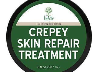 TreeActiv Crepey Skin Repair Treatment  Extra Strength Anti Aging Face Cream  Anti Wrinkle Cream for Face  8 fl oz  237 ml